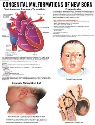 Congenital Malformation of New Born Chart