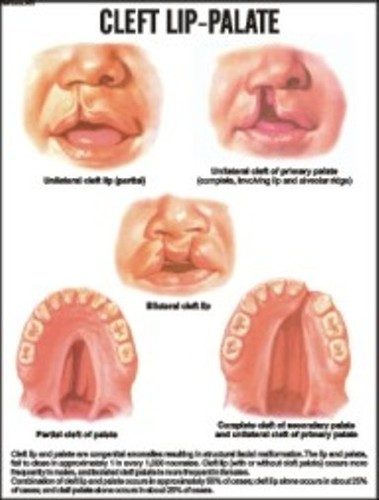 Cleft lip-Palate Chart