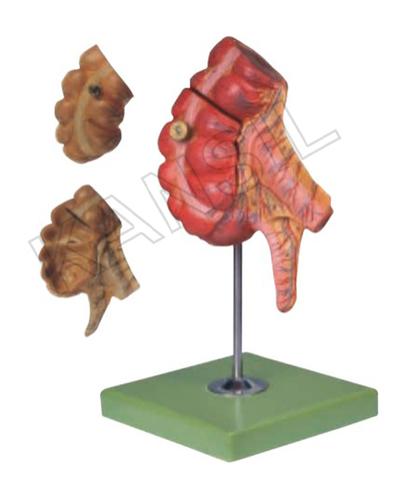 Appendix And Caecum Model