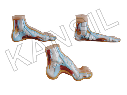 Normal, Flat and Arched Foot Model