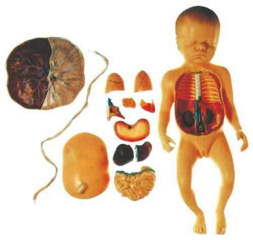 Fetus with Viscus and Placenta