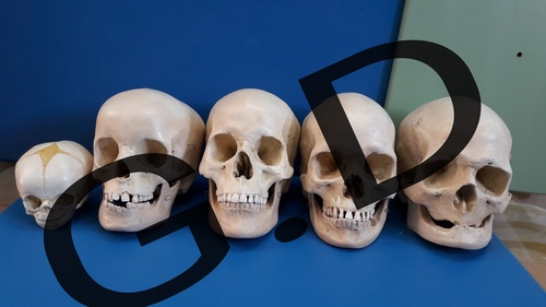 comparitive study 5 types skull