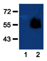 Anti-HA Tag (HA.C5) Monoclonal Antibody price @ 13000 only for 100 ug and price @7000 for 50ug