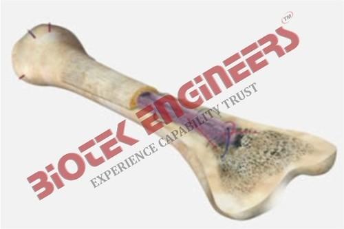 Tubular Bone