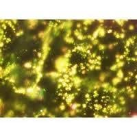 Gold Nanoparticle