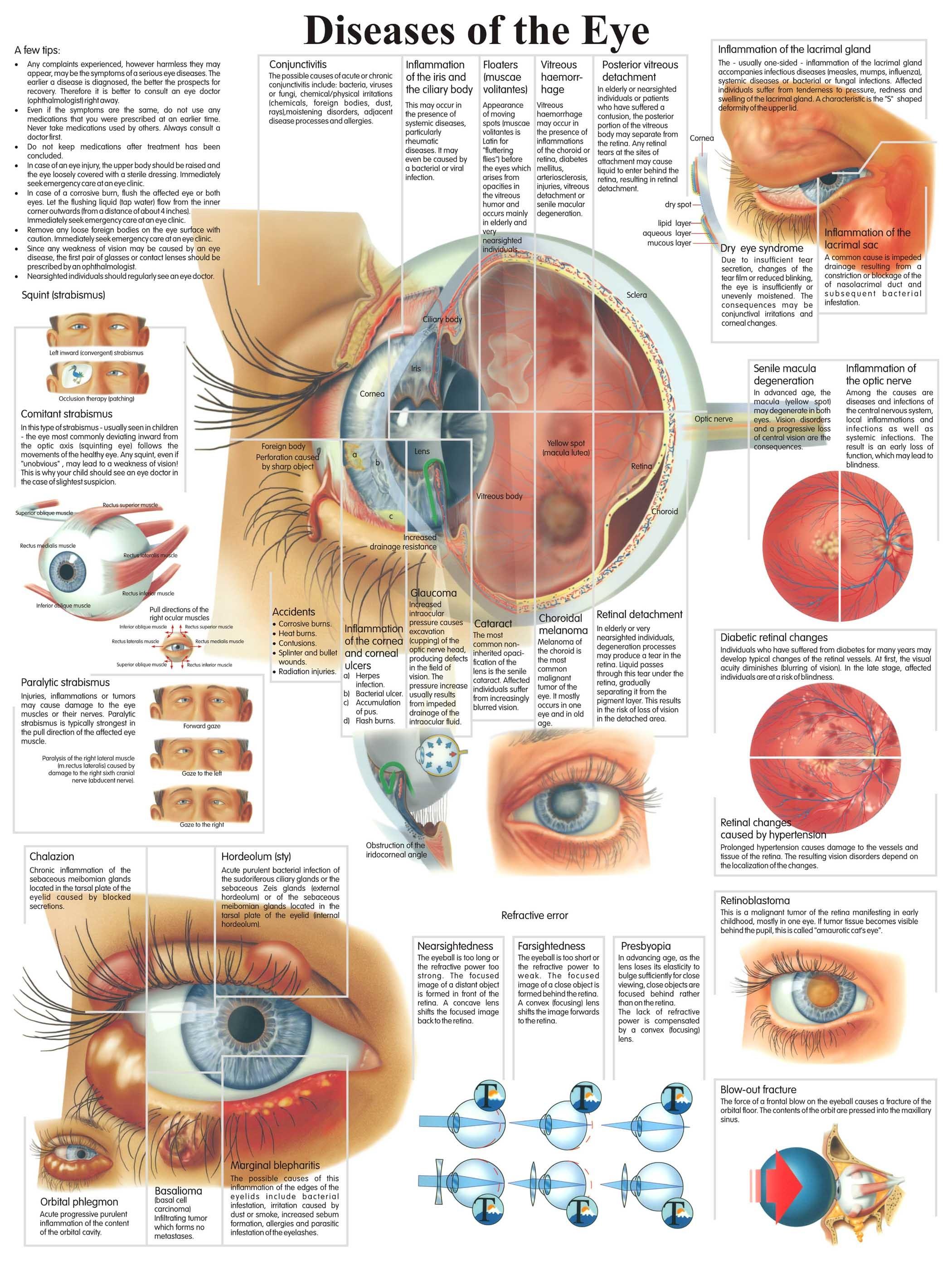 Human Eye Chart - Human Eye Chart Exporter, Manufacturer & Supplier ...