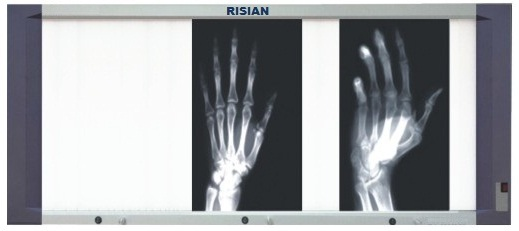 RISIAN Triple Section LED X Ray Film Viewer