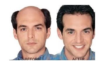 Hair Fixing Center