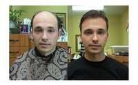 Hair Transplant in Kolkata