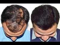 Hair Pasting Center