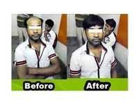 Hair Replacement Center in Kolkata