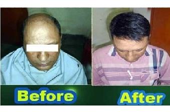 Hair Weaving Center in Kolkata
