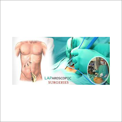 Laparoscopic Gastrointestinal Surgery