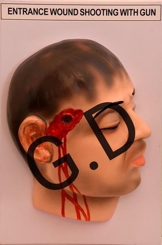 Enterance wound