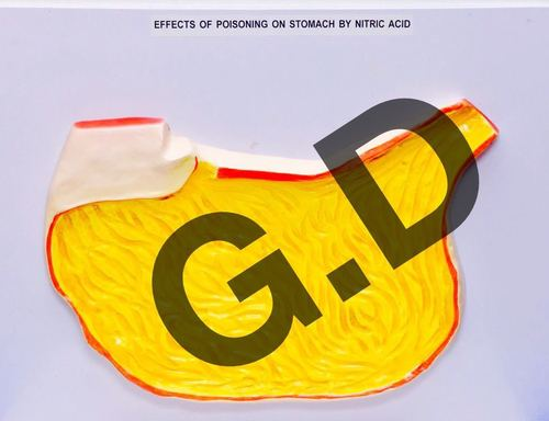 Effects Of Poisoning On Stomach By Nitric Acid Effects Of