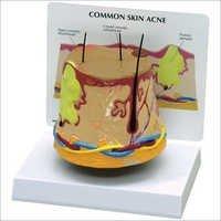 Common Skin Acne (Pharmacy Model)