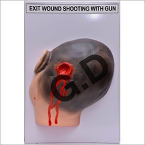 Forensic Model Exit Wound