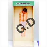 Forensic Model Of Suicidal Hanging