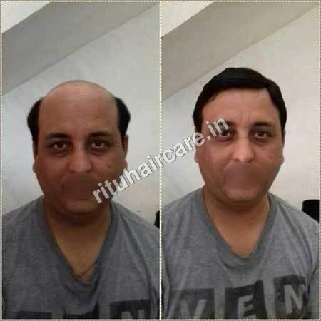 Men's Hair Patch Wigs