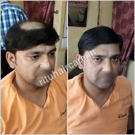 Mens Hair Weaving
