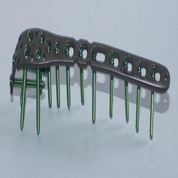 Orthopaedic Implants