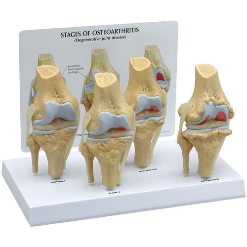 Stages of osteoarthritis ( Degenerative joint disease)