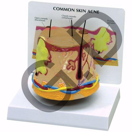 Common skin acne