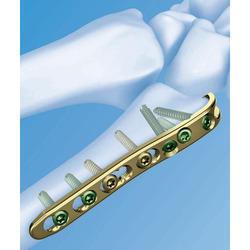 Bone Plates