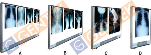 Led X-ray View Box