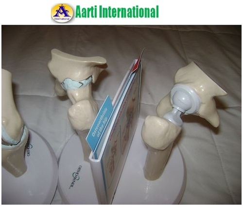 Hip Implant Anatomical Model