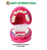 Orthodontics Treatment Teeth Model