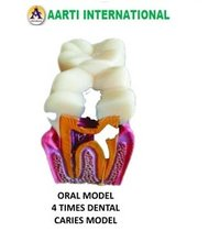 Oral Model 4 Time Dental Caries Model