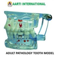 Adult Pathology Tooth Model