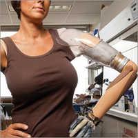 Shoulder Disarticulation Myo Hand Prosthesis