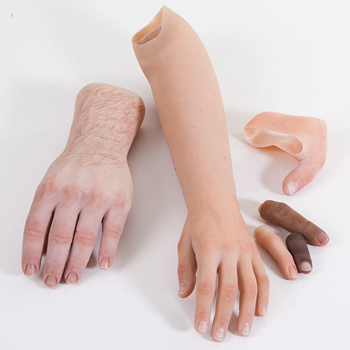 Cosmetic Hand Prosthesis