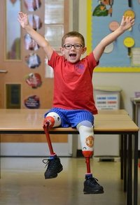Artificial Limbs For Children