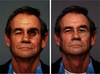 Maxillo Facial Prosthesis