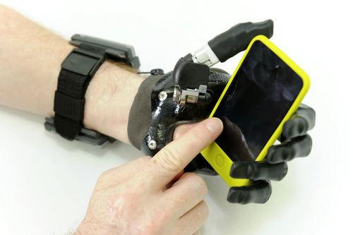 I-limb digit for partial hand