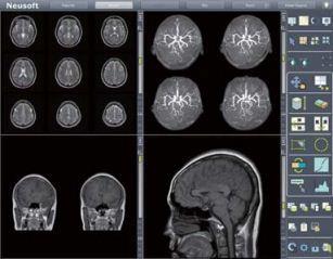 MRI Work Station