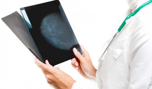 2D & 3D Digital Mammography