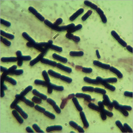 Clostridium butyricum CB-401 (MTCC 5399)