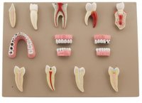 Dental Disease Set of 14