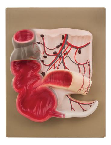 Expansion Model of the Caecum and Vermiform Appendix