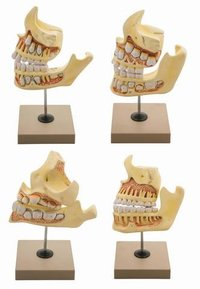 MODEL DENTAL DEVELOPMENT SET - NATURAL SIZE