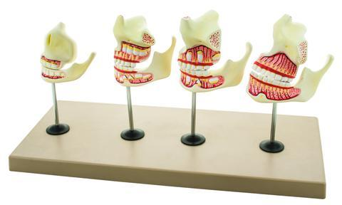 MODEL DENTITION DEVELOPMENT SET