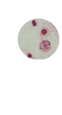 Chromosomes (400x)
