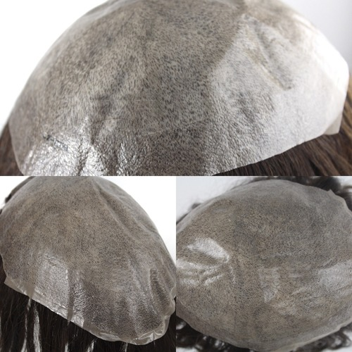 Mens Top Hair Patch