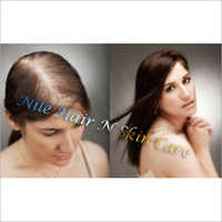 Ladies Hair Replacement Before and After