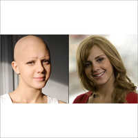 Ladies Chemotherapy Hair Wigs