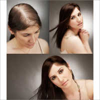 Ladies Hair Wigs Patches